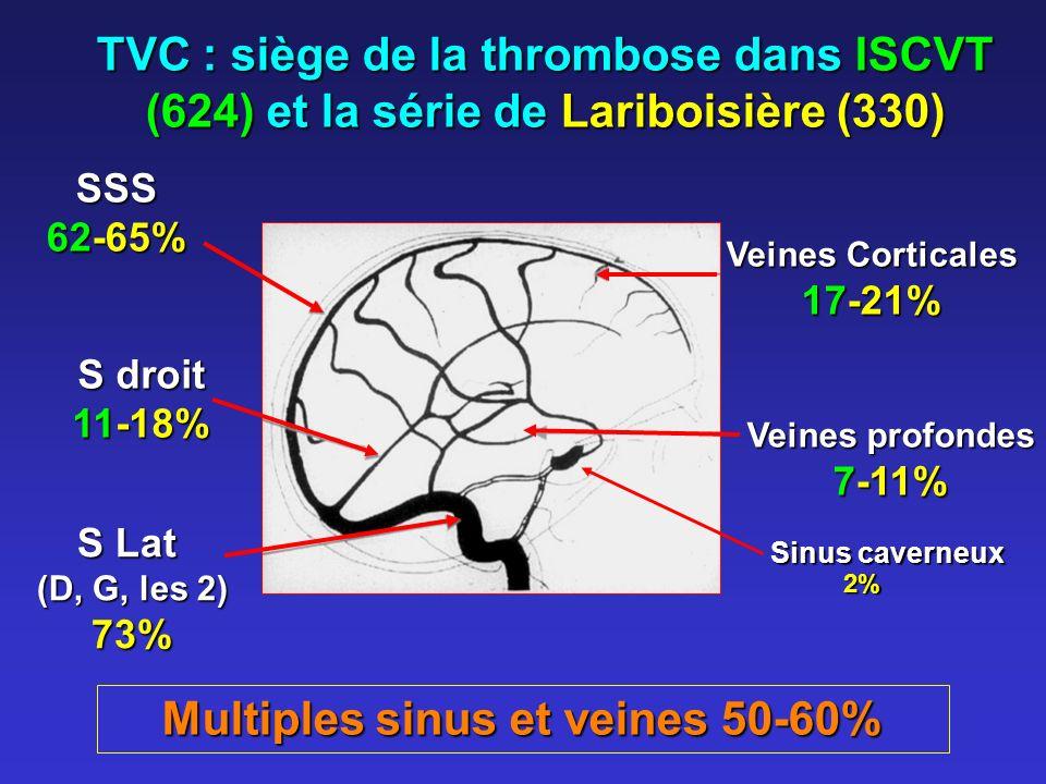 Multiples sinus et veines 50-60%