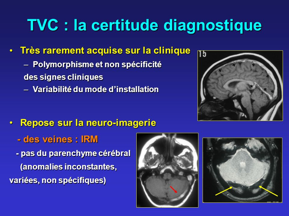 TVC : la certitude diagnostique
