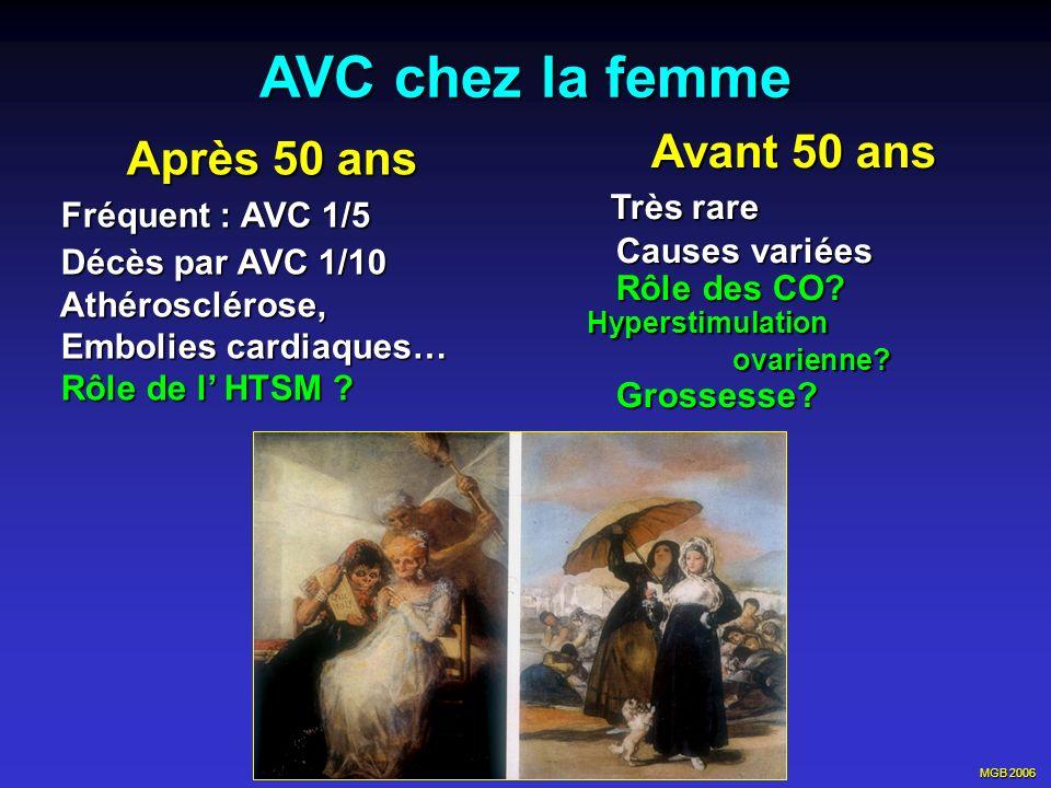 AVC chez la femme Après 50 ans Avant 50 ans Très rare