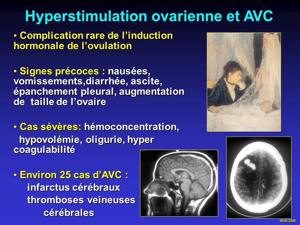 Hyperstimulation ovarienne et AVC