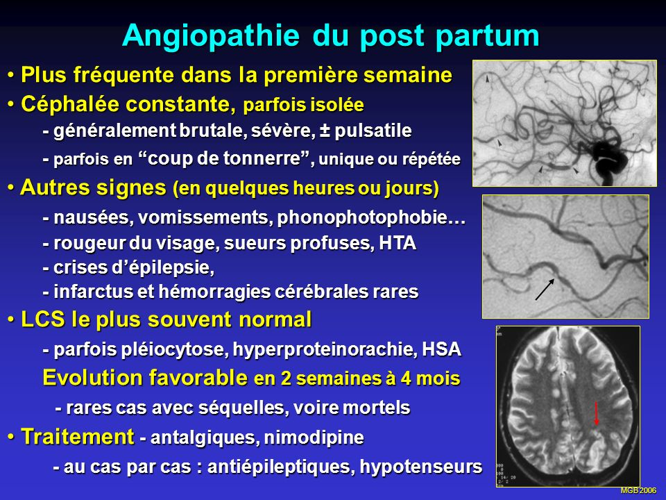 Angiopathie du post partum