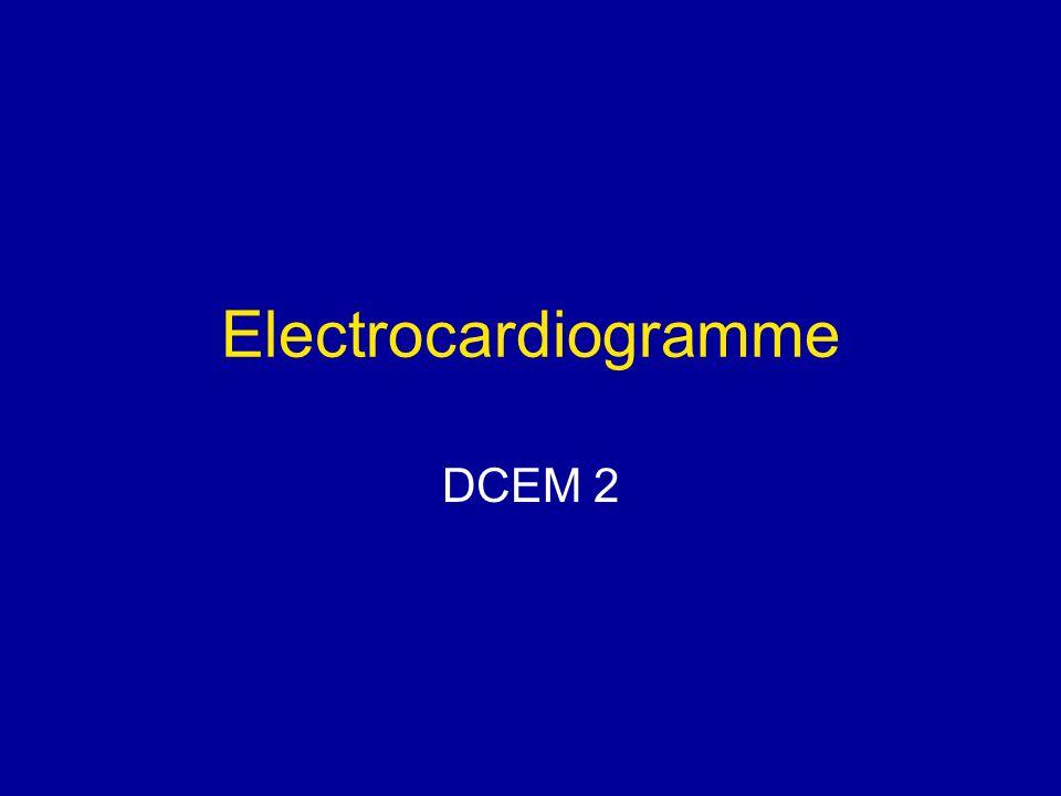 Electrocardiogramme DCEM 2