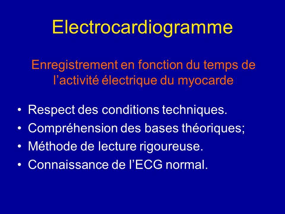 Electrocardiogramme Enregistrement en fonction du temps de