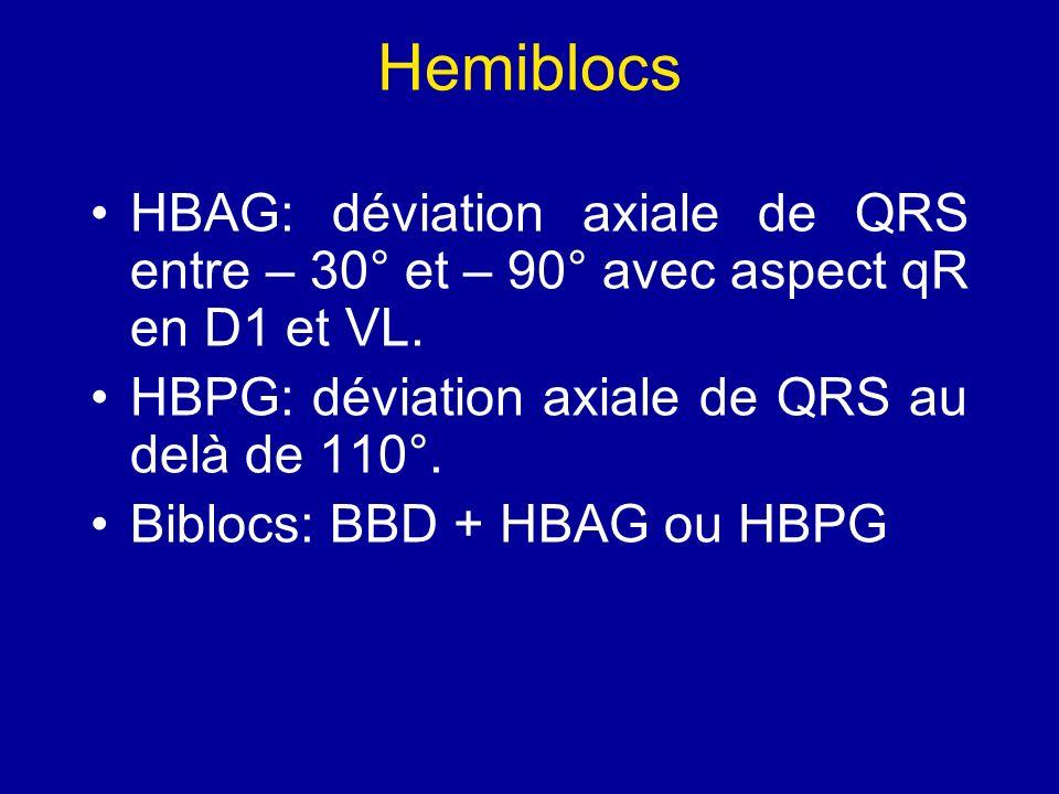 Hemiblocs HBAG: déviation axiale de QRS entre – 30° et – 90° avec aspect qR en D1 et VL. HBPG: déviation axiale de QRS au delà de 110°.