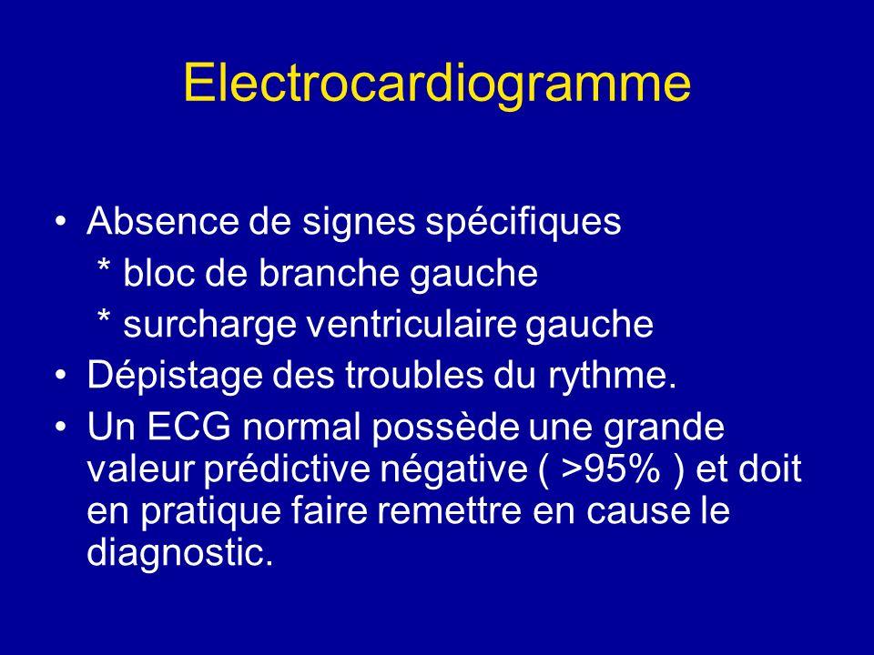 Electrocardiogramme Absence de signes spécifiques