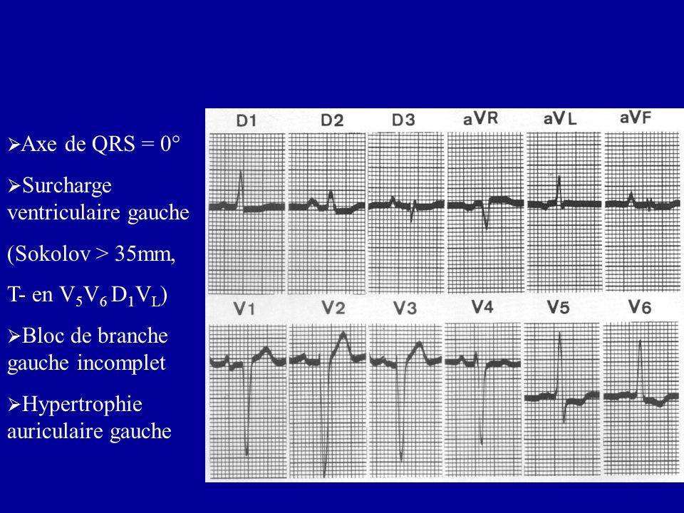 Axe de QRS = 0°Surcharge ventriculaire gauche. (Sokolov > 35mm, T- en V5V6 D1VL) Bloc de branche gauche incomplet.