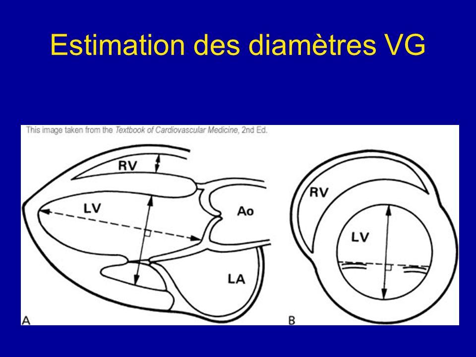 Estimation des diamètres VG
