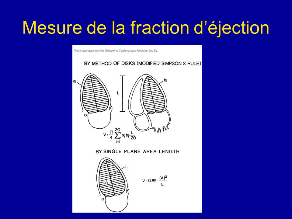 Mesure de la fraction d'éjection