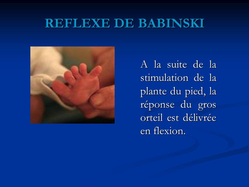 REFLEXE DE BABINSKI A la suite de la stimulation de la plante du pied, la réponse du gros orteil est délivrée en flexion.