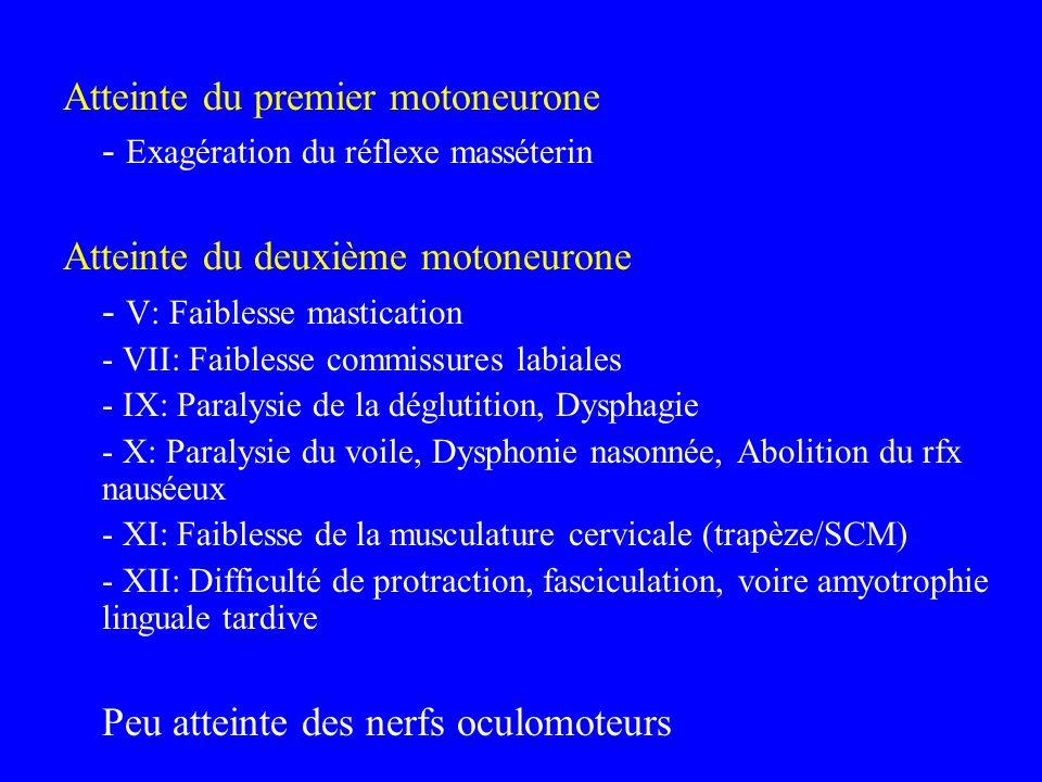 Atteinte du premier motoneurone - Exagération du réflexe masséterin