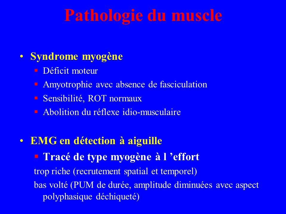 Pathologie du muscle Syndrome myogène EMG en détection à aiguille