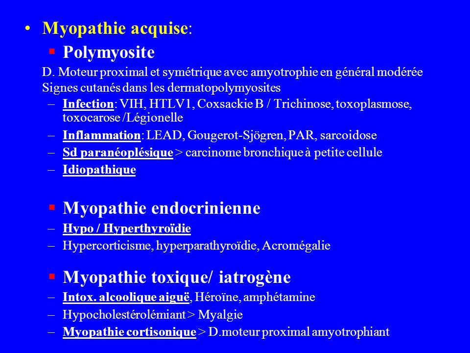 Myopathie endocrinienne