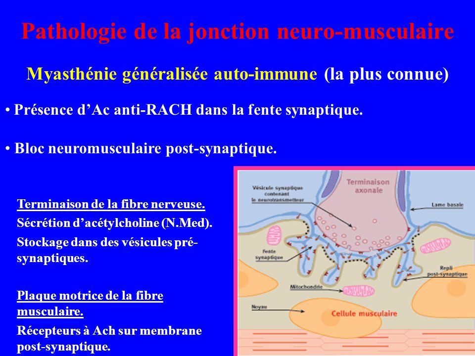 Pathologie de la jonction neuro-musculaire