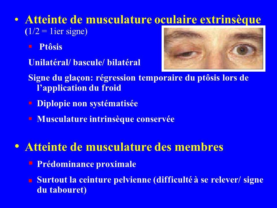 Atteinte de musculature oculaire extrinsèque (1/2 = 1ier signe)