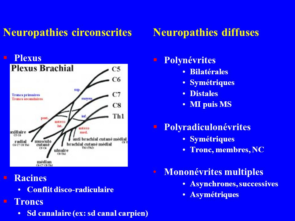 Neuropathies circonscrites Neuropathies diffuses
