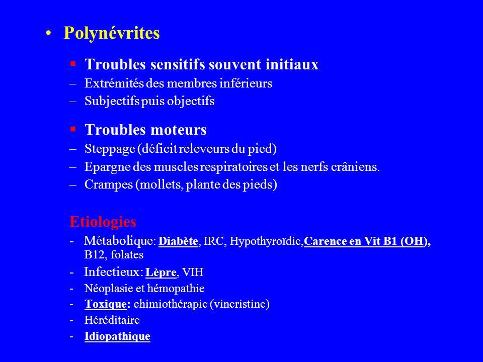 Polynévrites Troubles sensitifs souvent initiaux Troubles moteurs