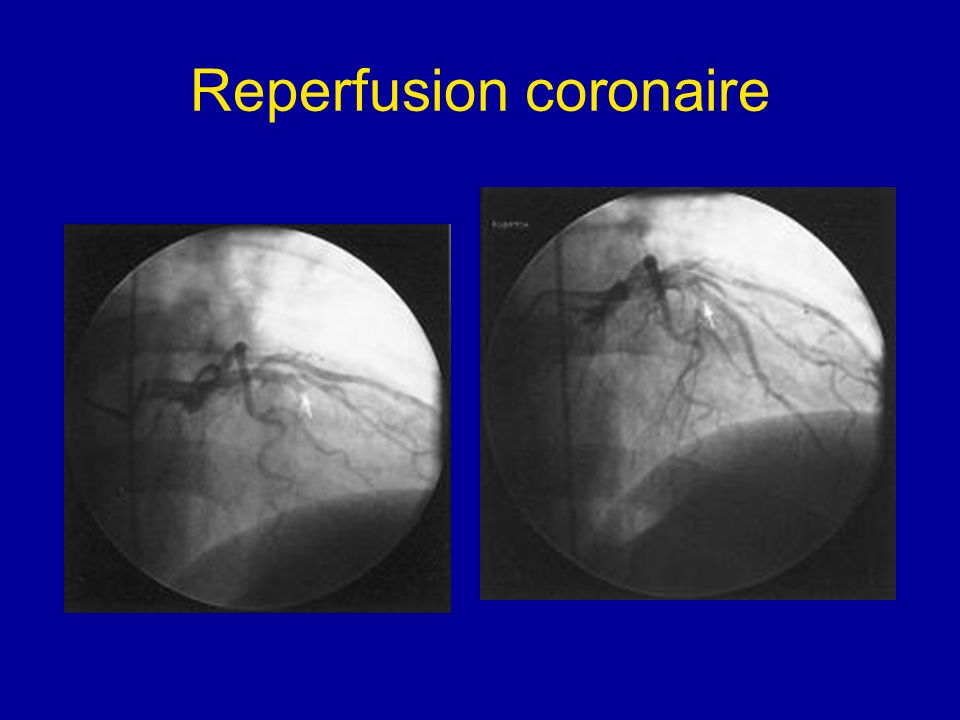 Reperfusion coronaire