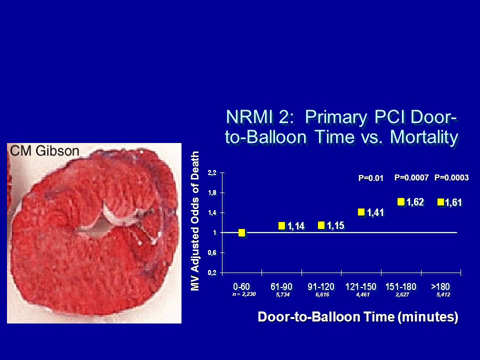 NRMI 2: Primary PCI Door-to-Balloon Time vs. Mortality
