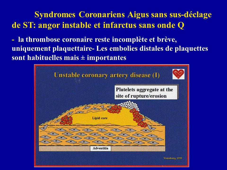 Syndromes Coronariens Aigus sans sus-déclage de ST: angor instable et infarctus sans onde Q