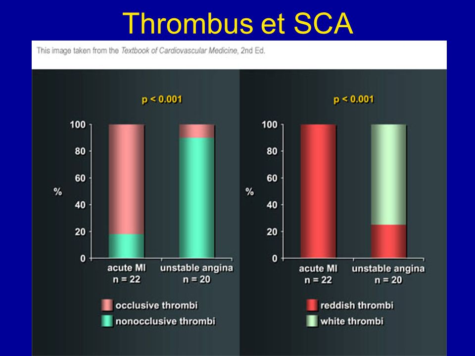 Thrombus et SCA