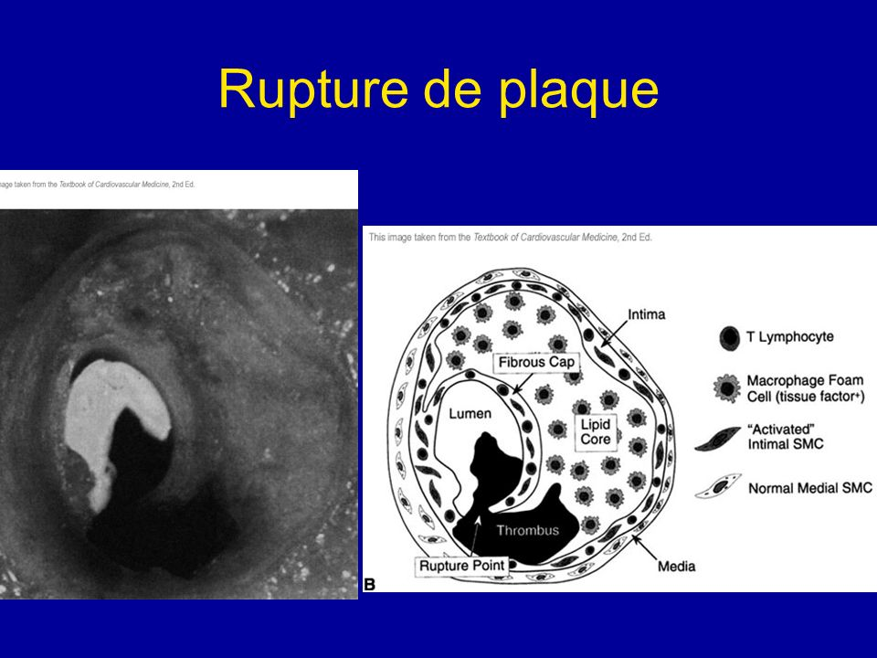 Rupture de plaque
