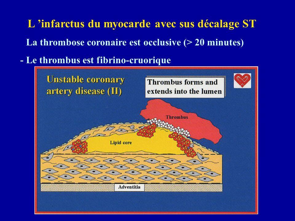 L 'infarctus du myocarde avec sus décalage ST