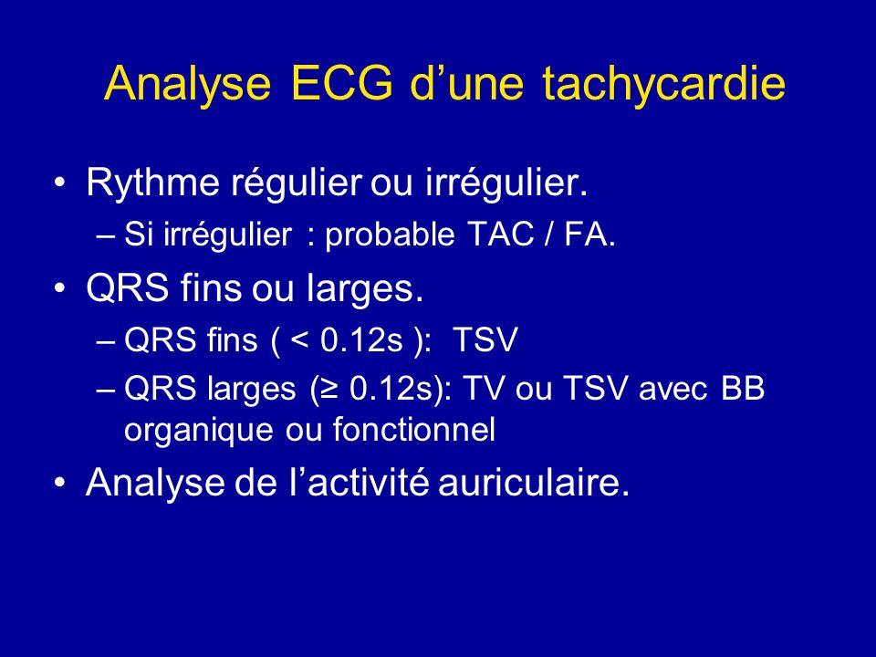 Analyse ECG d'une tachycardie