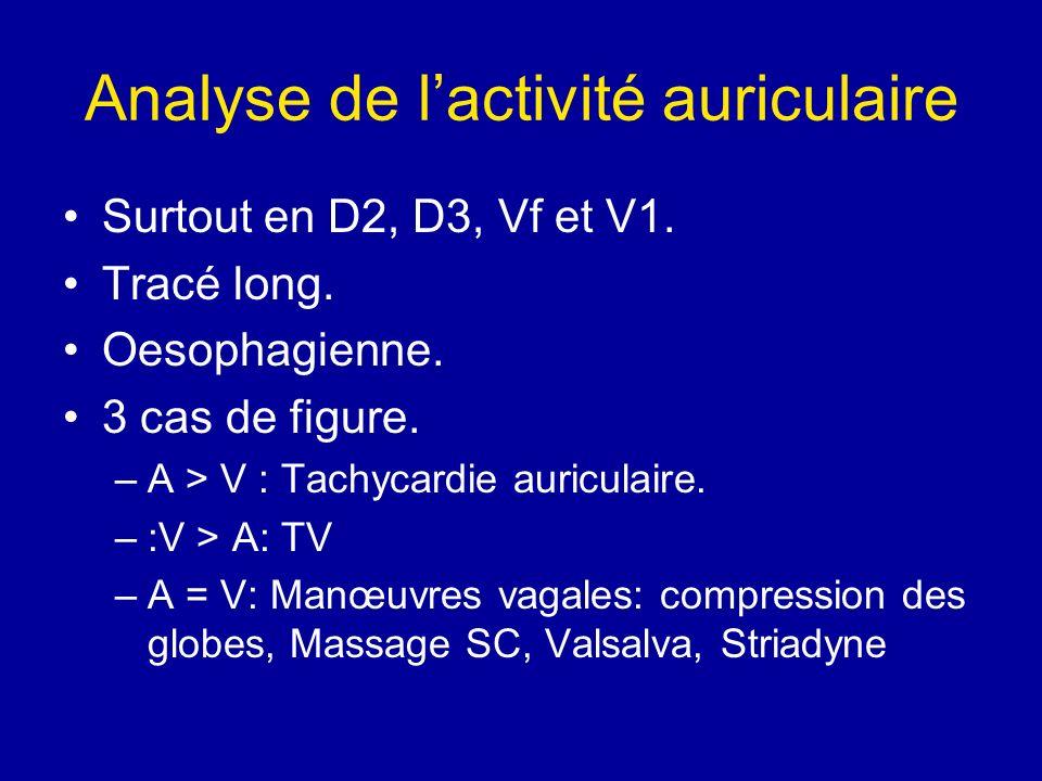 Analyse de l'activité auriculaire