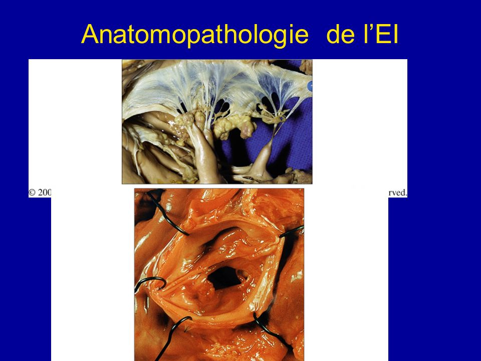 Anatomopathologie de l'EI