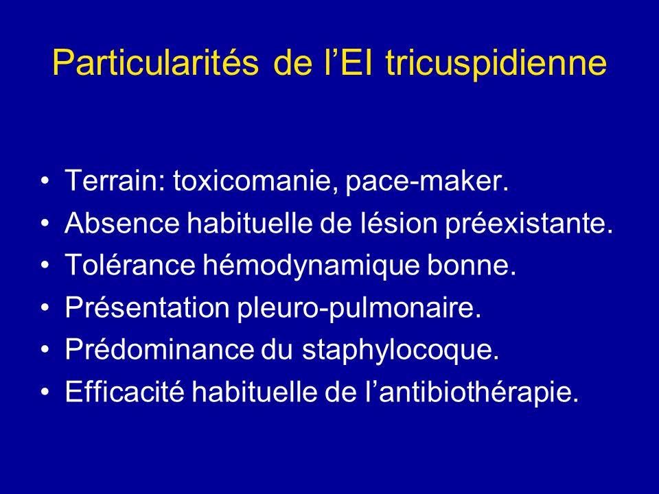 Particularités de l'EI tricuspidienne