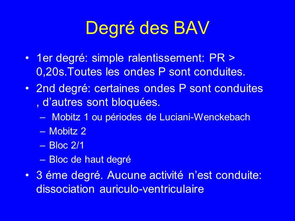 Degré des BAV 1er degré: simple ralentissement: PR > 0,20s.Toutes les ondes P sont conduites.