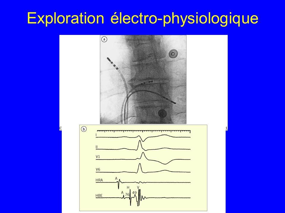 Exploration électro-physiologique