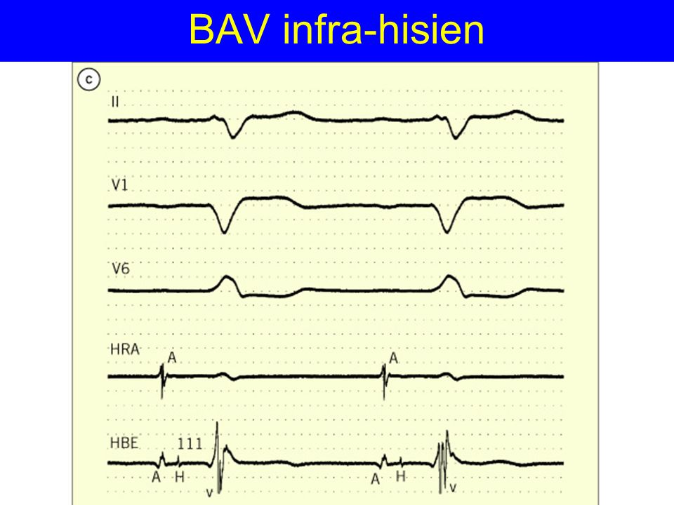 BAV infra-hisien