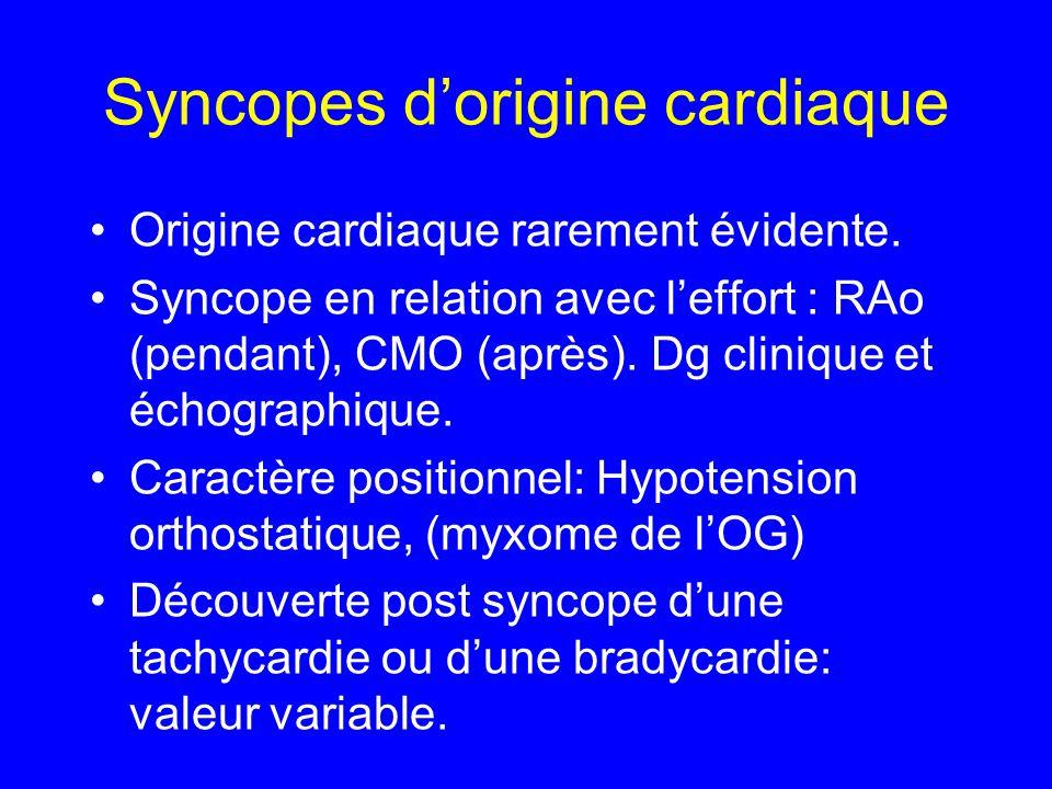 Syncopes d'origine cardiaque