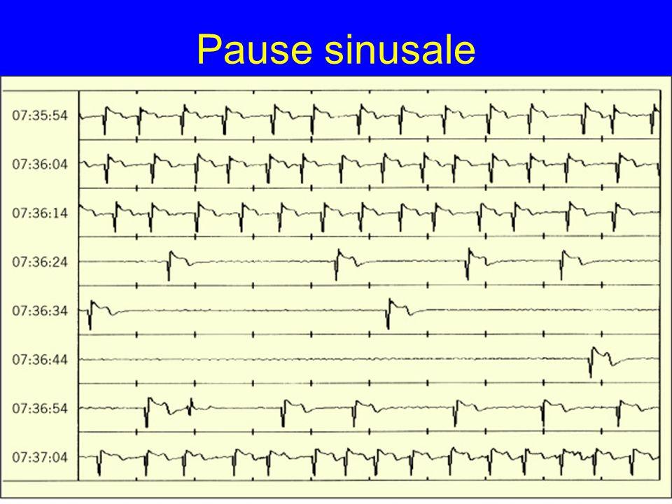 Pause sinusale