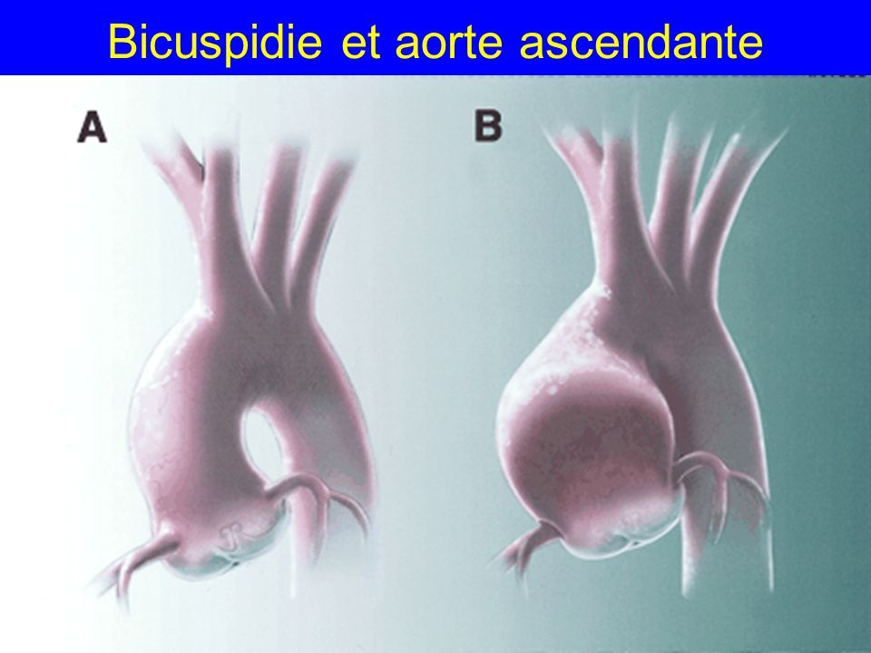 Bicuspidie et aorte ascendante