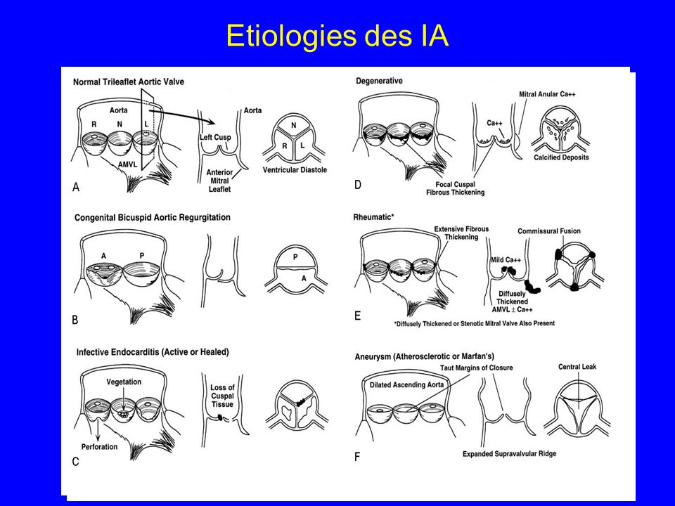 Etiologies des IA