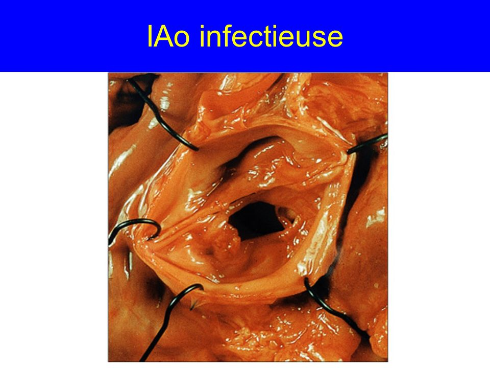 IAo infectieuse