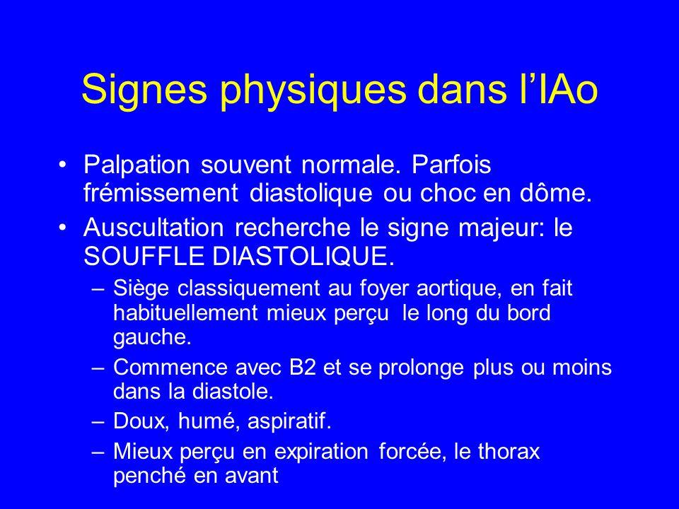 Signes physiques dans l'IAo