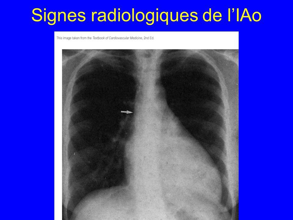 Signes radiologiques de l'IAo