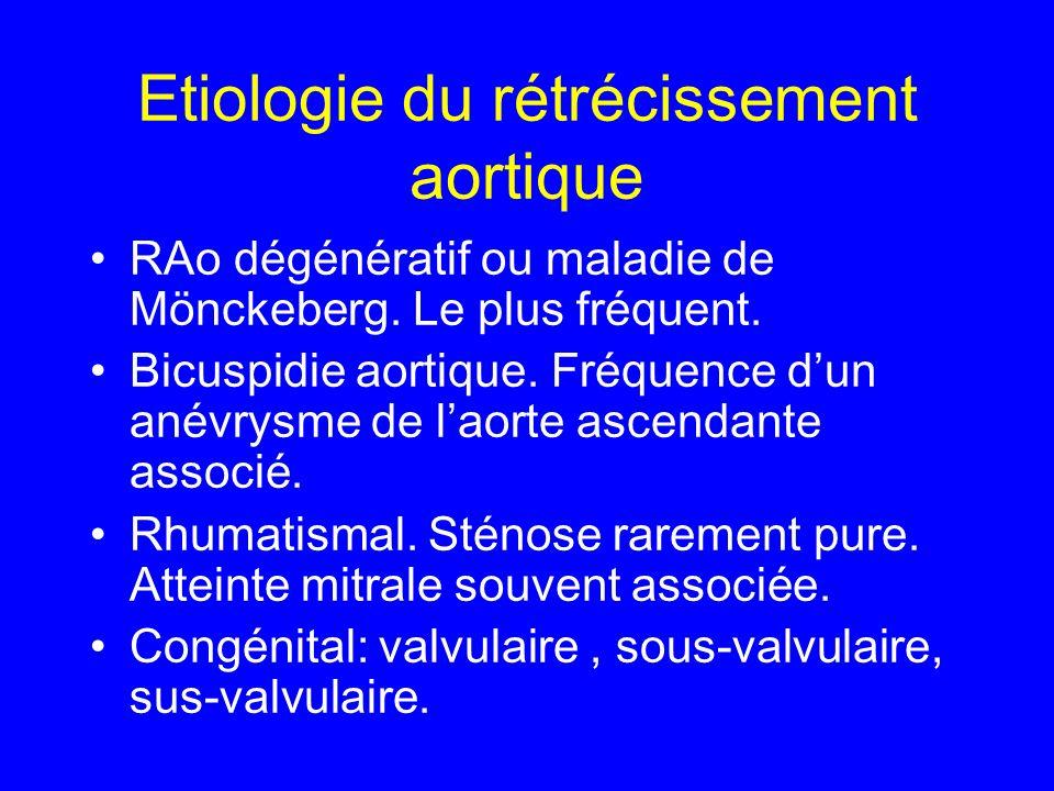 Etiologie du rétrécissement aortique