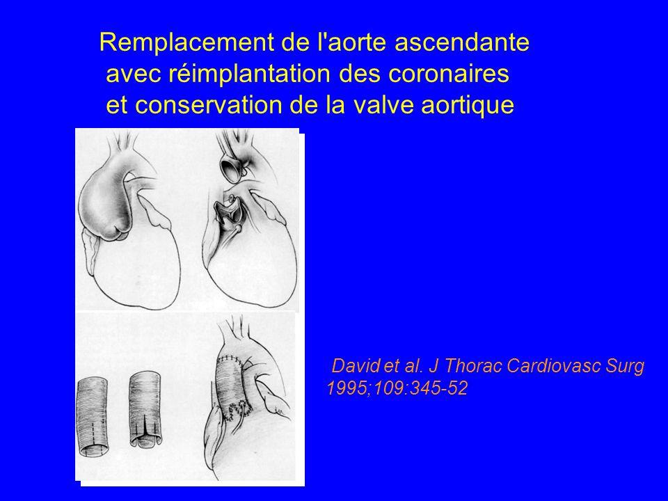 Remplacement de l aorte ascendante avec réimplantation des coronaires