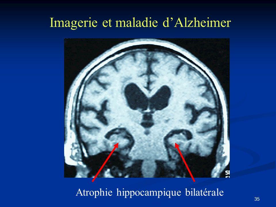 Imagerie et maladie d'Alzheimer