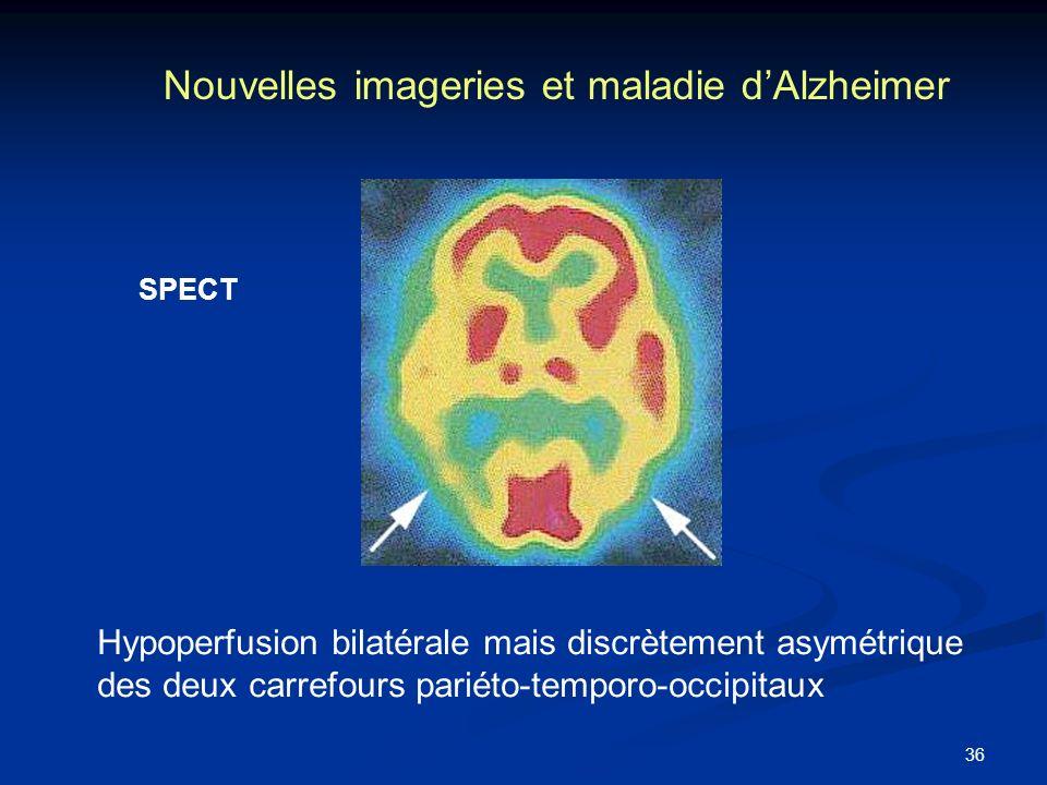 Nouvelles imageries et maladie d'Alzheimer