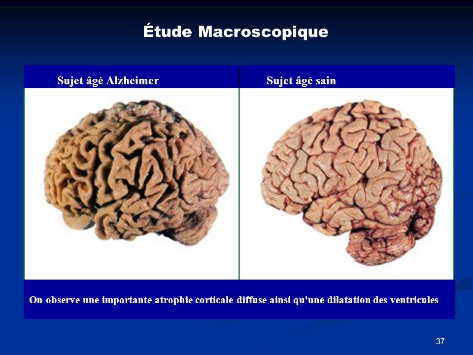 Étude Macroscopique Sujet âgé Alzheimer Sujet âgé sain