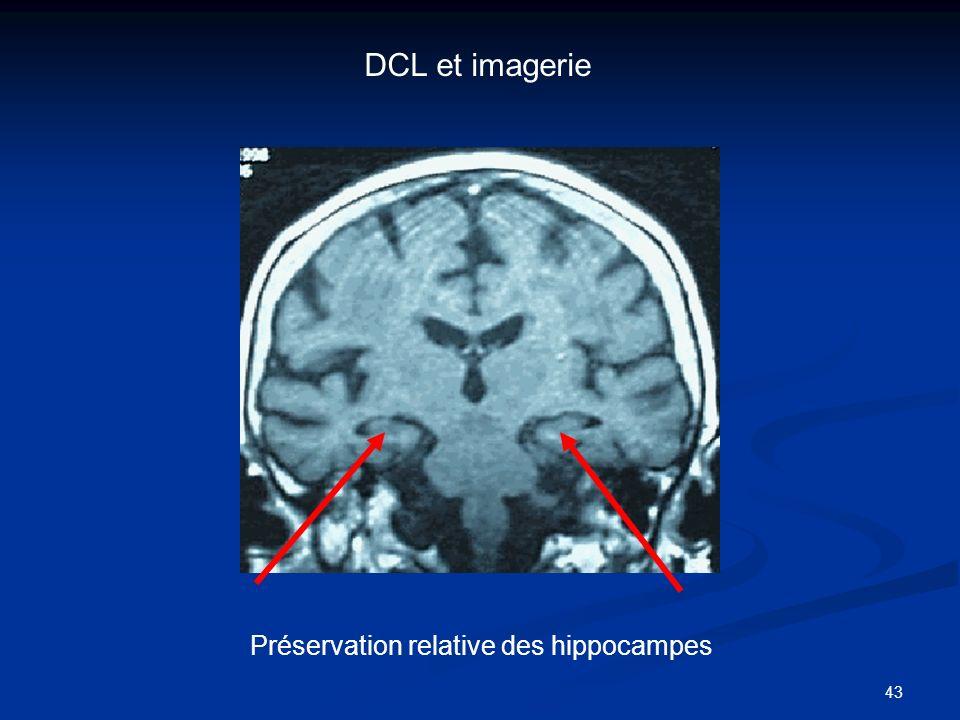 DCL et imagerie Préservation relative des hippocampes