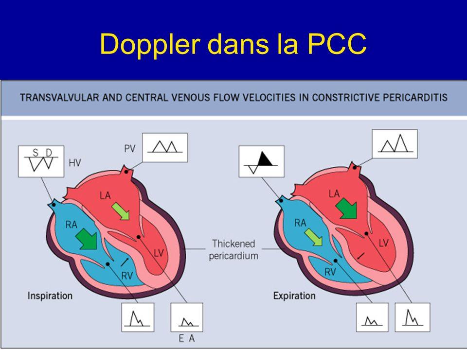 Doppler dans la PCC