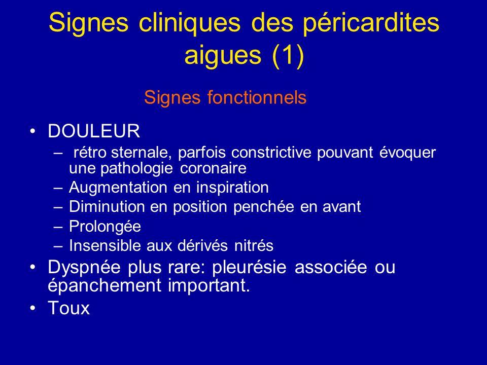 Signes cliniques des péricardites aigues (1)