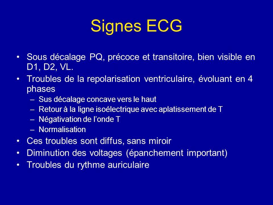 Signes ECG Sous décalage PQ, précoce et transitoire, bien visible en D1, D2, VL. Troubles de la repolarisation ventriculaire, évoluant en 4 phases.