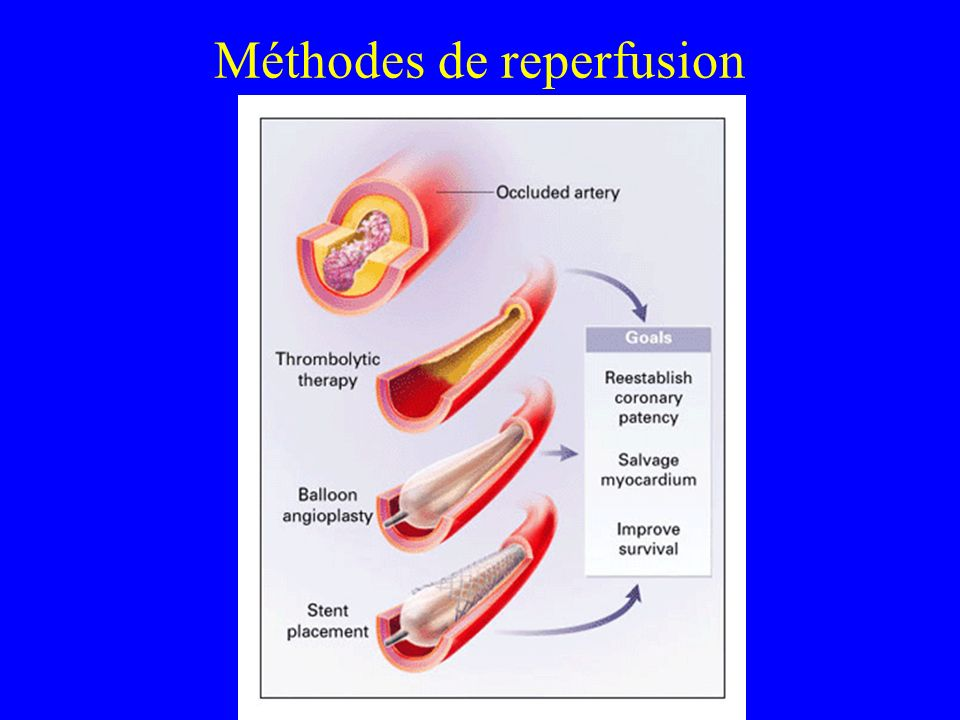 Méthodes de reperfusion